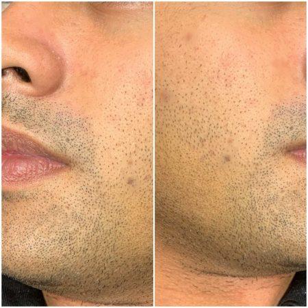 beardmicropigmentation